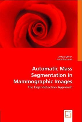 Automatic Mass Segmentation in Mammographic Images | Dodax.ch