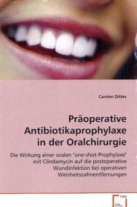 Präoperative Antibiotikaprophylaxe in der Oralchirurgie | Dodax.at