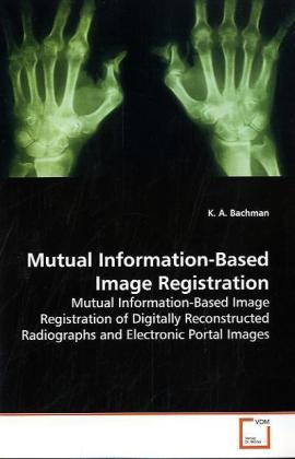 Mutual Information-Based Image Registration | Dodax.ch