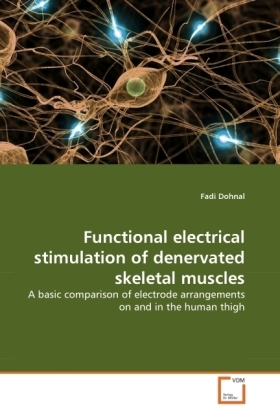 Functional electrical stimulation of denervated skeletal muscles   Dodax.ch