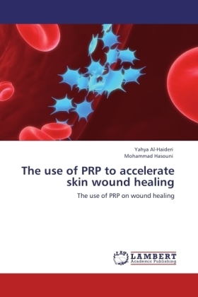 The use of PRP to accelerate skin wound healing | Dodax.pl