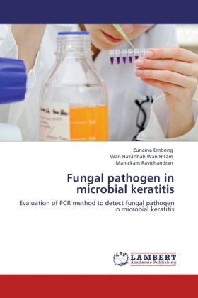 Fungal pathogen in microbial keratitis | Dodax.co.uk