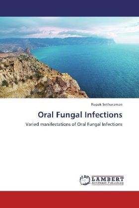 Oral Fungal Infections   Dodax.at