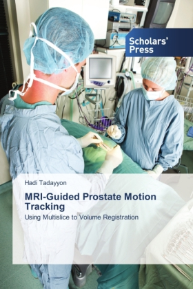 MRI-Guided Prostate Motion Tracking | Dodax.ch
