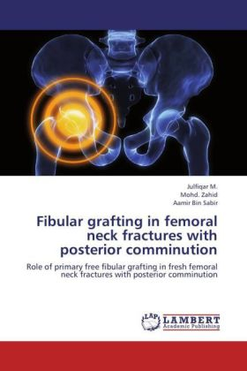 Fibular grafting in femoral neck fractures with posterior comminution   Dodax.ch