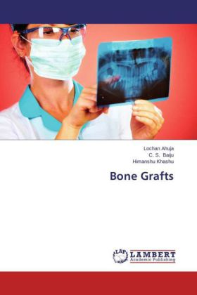 Bone Grafts | Dodax.de