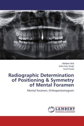 Radiographic Determination of Positioning & Symmetry of Mental Foramen | Dodax.ch