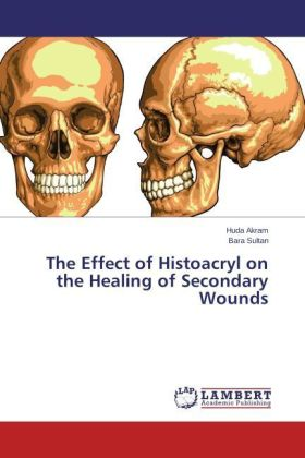 The Effect of Histoacryl on the Healing of Secondary Wounds   Dodax.at