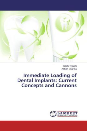 Immediate Loading of Dental Implants: Current Concepts and Cannons | Dodax.de