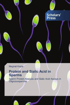 Protein and Sialic Acid in Sperms | Dodax.de