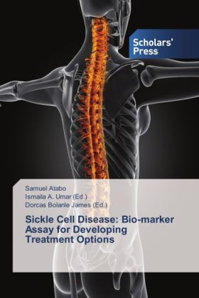 Sickle Cell Disease: Bio-marker Assay for Developing Treatment Options | Dodax.pl