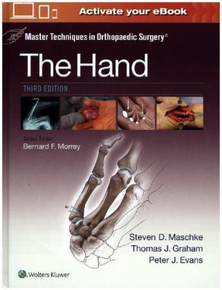 Master Techniques in Orthopaedic Surgery: The Hand | Dodax.de