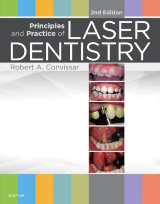 Principles and Practice of Laser Dentistry | Dodax.at