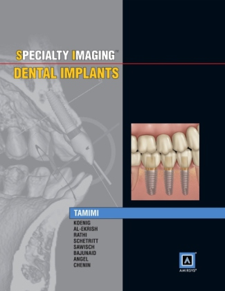 Specialty Imaging: Dental Implants | Dodax.at