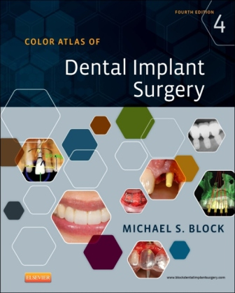 Color Atlas of Dental Implant Surgery | Dodax.at