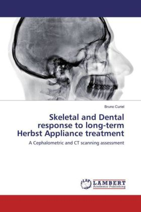 Skeletal and Dental response to long-term Herbst Appliance treatment | Dodax.de
