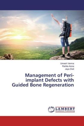Management of Peri-implant Defects with Guided Bone Regeneration | Dodax.de