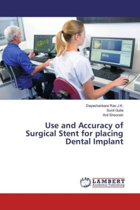 Use and Accuracy of Surgical Stent for placing Dental Implant | Dodax.de
