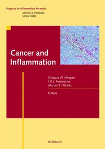 Cancer and Inflammation | Dodax.pl
