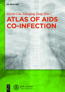 Atlas of AIDS Co-infection   Dodax.pl