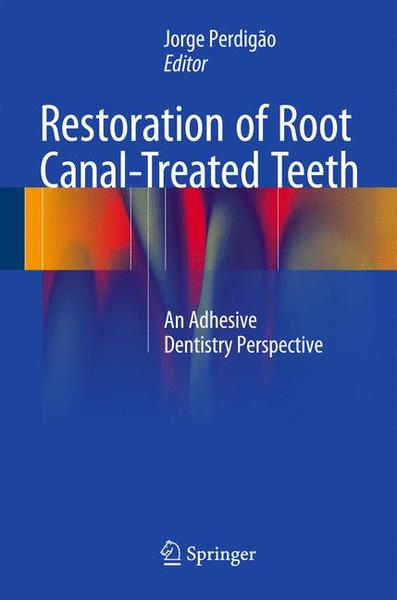 Restoration of Root Canal-Treated Teeth | Dodax.at
