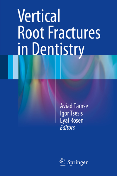 Vertical Root Fractures in Dentistry   Dodax.at