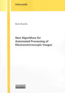 New Algorithms for Automated Processing of Electronmicroscopic Images | Dodax.ch