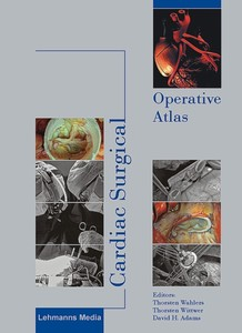 Cardiac Surgical Operative Atlas | Dodax.at